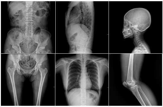 radiographie